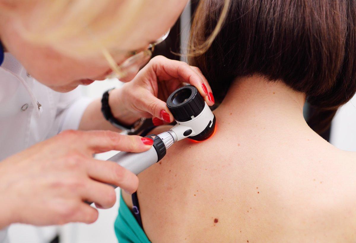 Mladeži i promene na koži – Razlog za strah ili normalna pojava?
